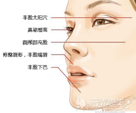 面部注射玻尿酸