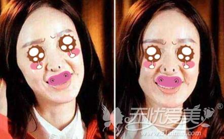 玻尿酸注射后脸僵硬