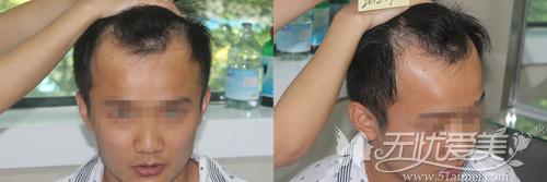 植发前发量稀少