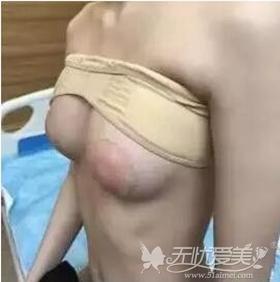我在北京叶美人做假体隆胸手术后10天