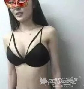 我在北京叶美人做假体隆胸手术后5个月