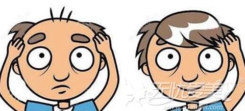 别人头发移植在自己头上