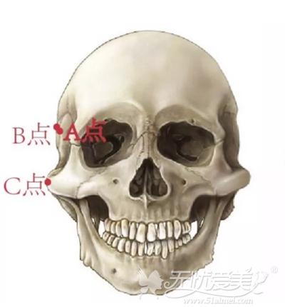 颧骨内推手术改善颧骨颧弓宽