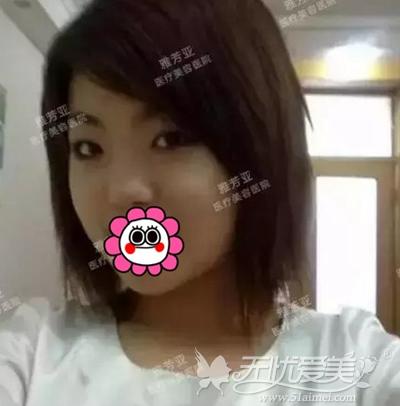 我在石家庄雅芳亚做眼鼻综合+瘦脸针前