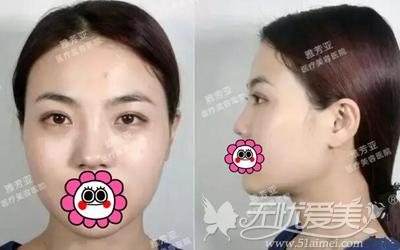 我在石家庄雅芳亚做鼻综合手术前照片