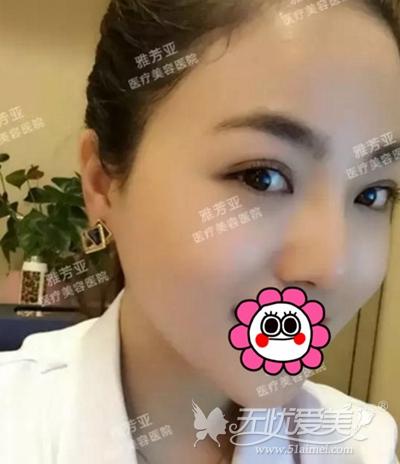 我在石家庄雅芳亚做眼鼻综合+注射瘦脸针后恢复情况