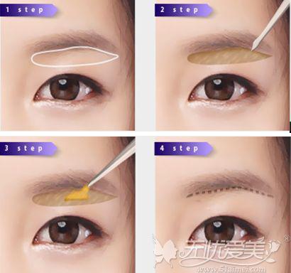 切眉眼角提升手术原理