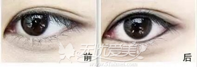 美瞳线效果对比