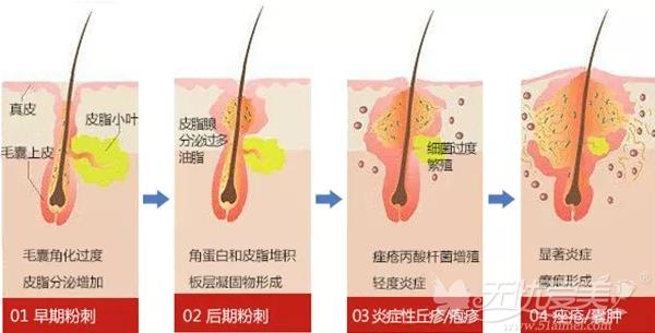 长痘痘各个阶段的治疗过程