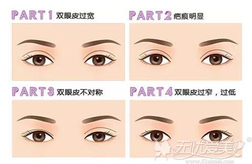需要做修复的双眼皮情况
