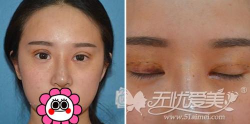 我在深圳江南春天做双眼皮手术+注射隆鼻术后6天