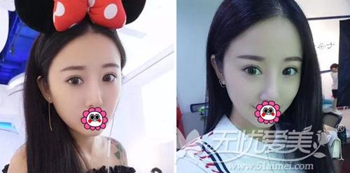 我在深圳江南春天做双眼皮手术+注射隆鼻术后1个月