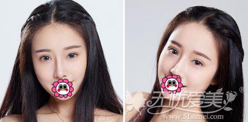 我在深圳江南春天做双眼皮手术+注射隆鼻术后50天