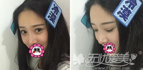 我在深圳江南春天做双眼皮手术+注射隆鼻术后2个月