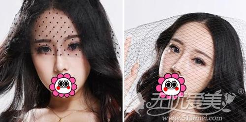 我在深圳江南春天做双眼皮手术+注射隆鼻术后3个月