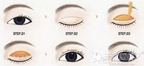 切开双眼皮手术方法