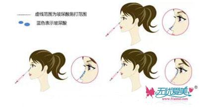 玻尿酸注射隆鼻的效果