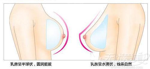 假体隆胸的形状圆形和水滴形