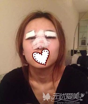 眼鼻术后第一天