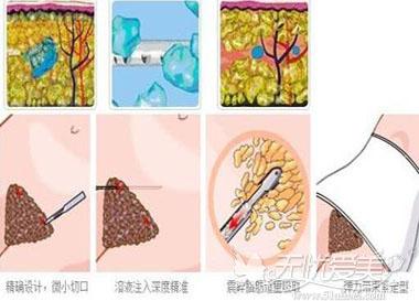 吸脂手术的过程
