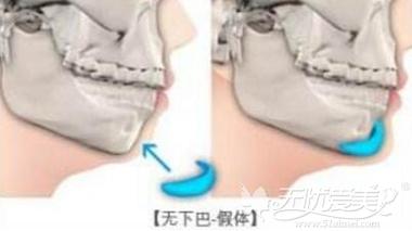 下巴的硅胶假体