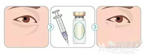 玻尿酸填充泪沟方法