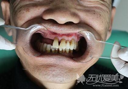 北京维尔口腔手术前