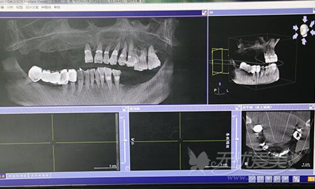 口腔CT的扫描片