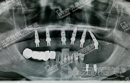 种植后CT的情况