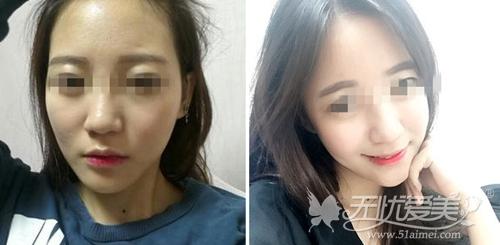 韩国芙莱思钻石线条脂肪填充案例