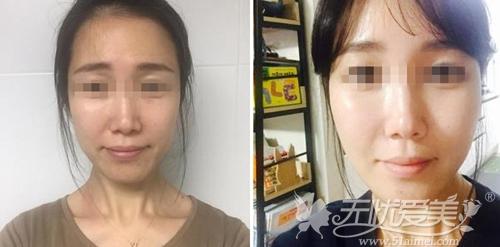 韩国劳波儿面部脂肪填充案例