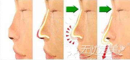 隆鼻假体穿出鼻尖的过程