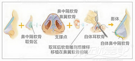 综合隆鼻不会造成假体外露