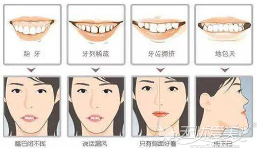 牙齿正畸可改变的脸型