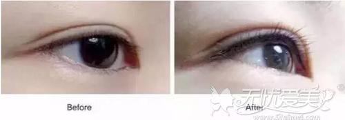纹美瞳线前后对比
