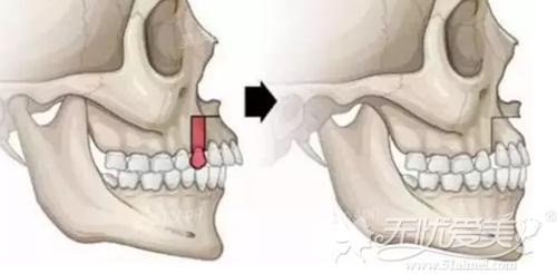 上颌矫正手术可以改善地包天