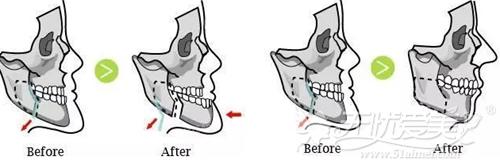 下颌畸形矫正手术