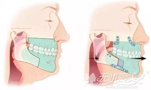 双颌矫正手术效果