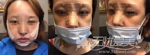 在广州壹加壹颧骨整形手术后5天