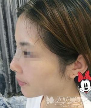 长沙雅美膨体隆鼻整形术后3天