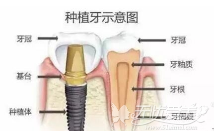 种植牙的组成部分