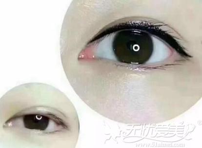 哪些人不适合做美瞳线