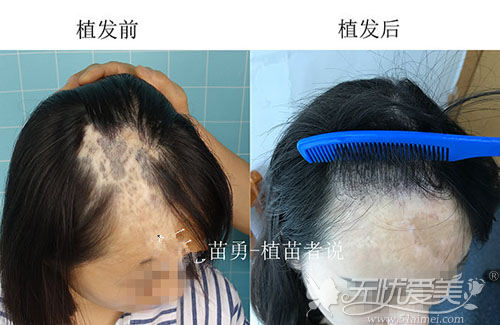 毛发移植修复烫伤后瘢痕脱发