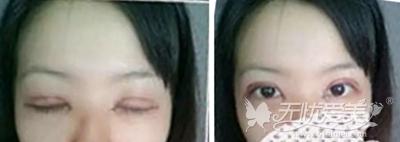 在合肥韩美做双眼皮手术后1天