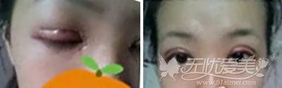 在合肥韩美做双眼皮手术后2天