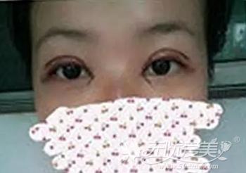 在合肥韩美做双眼皮手术后3天