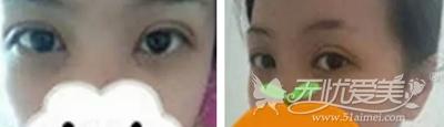在合肥韩美做双眼皮手术后6天