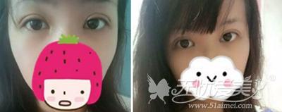 在合肥韩美做双眼皮手术后8天