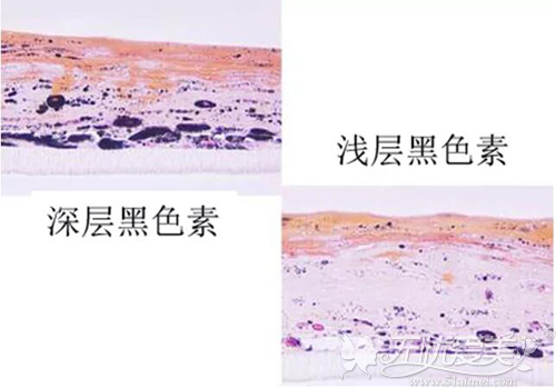 雀斑是浅层斑,黄褐斑是深层斑