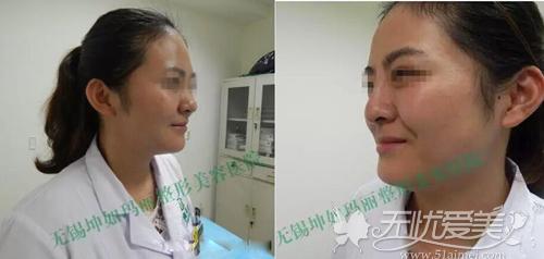玻尿酸隆鼻前后对比